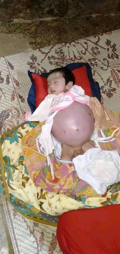 Bayi Mungil Tersumbat Usus Butuh Uluran Tangan
